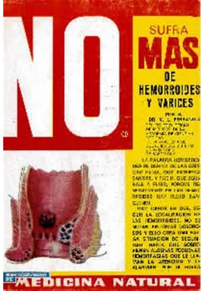 No sufra más de hemorroides y varices