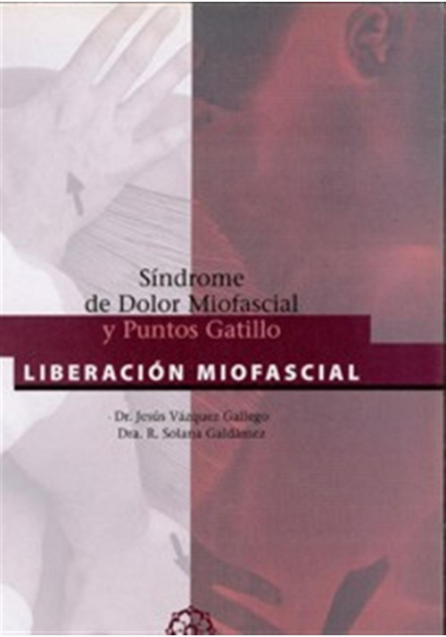 Síndrome del Dolor Miofascial